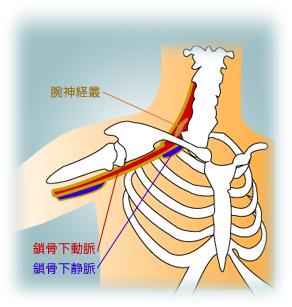 外傷性胸郭出口症候群